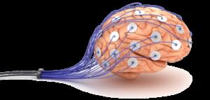 natural remedies for migraine headaches