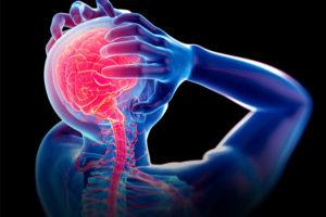 Diagnosis-Migraine
